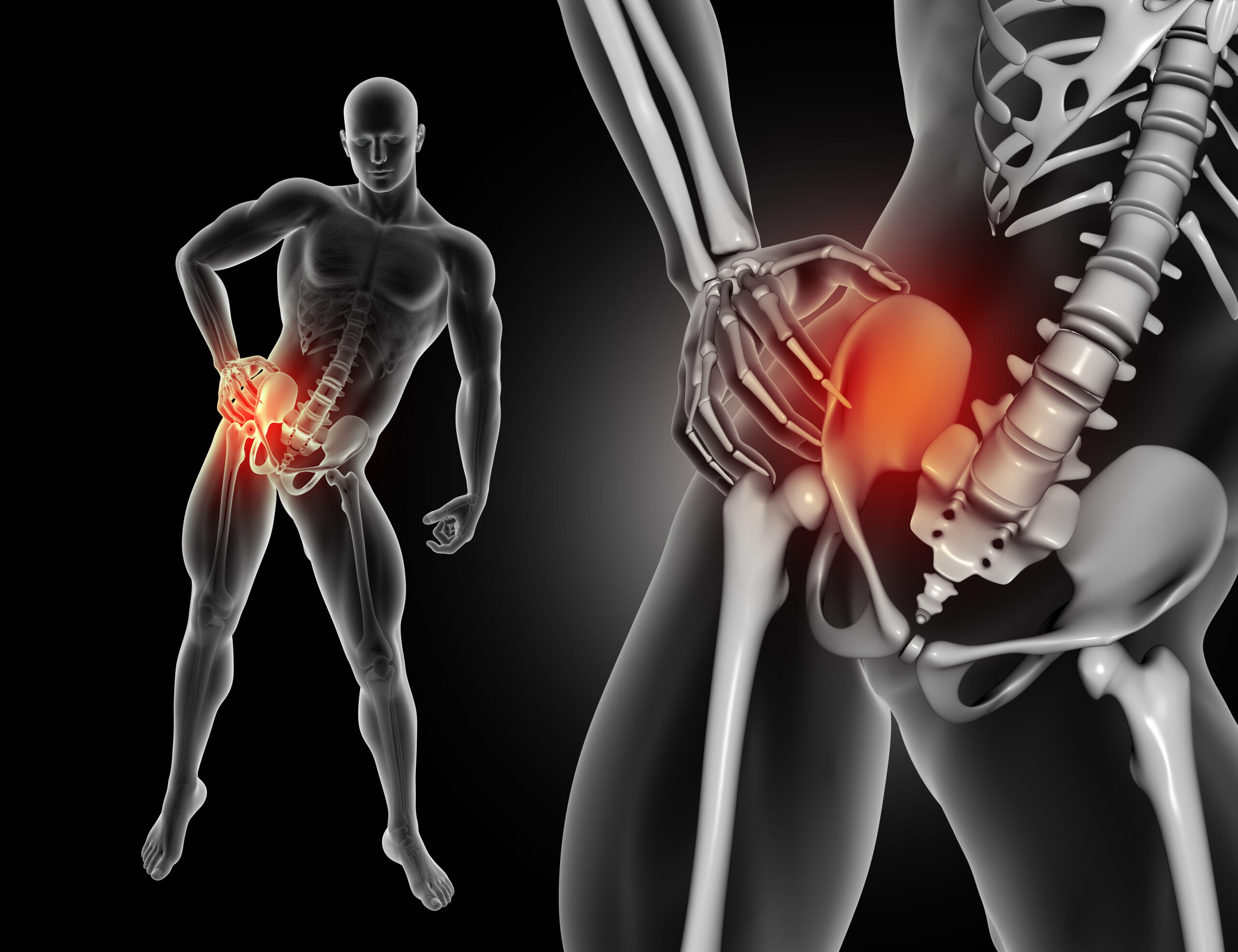Cost for Hip replacement treatment at Gujarat in India
