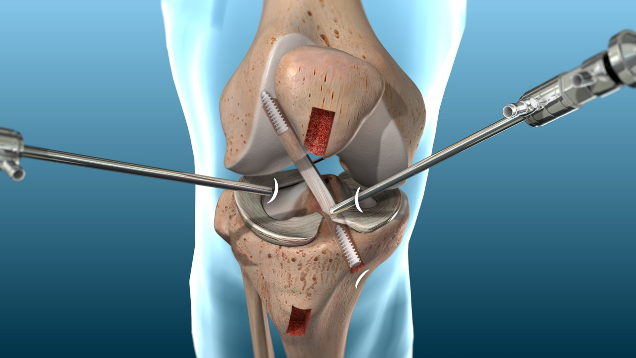 ACL Surgery in India