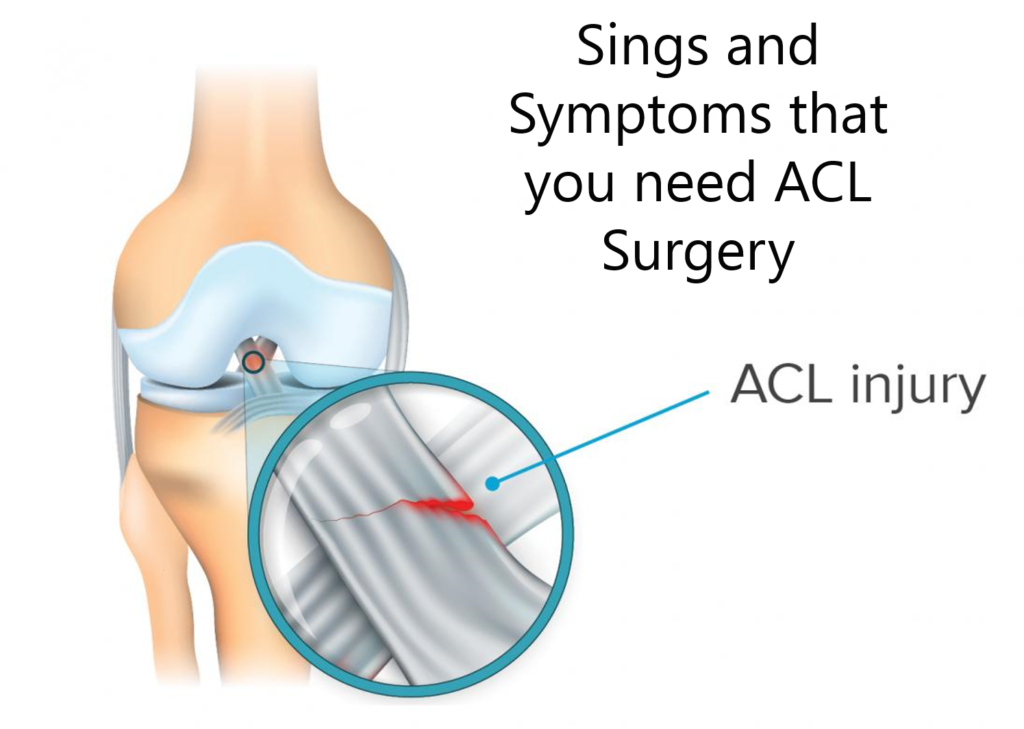 ACL Tear Treatment and Best ACL Surgeon in India